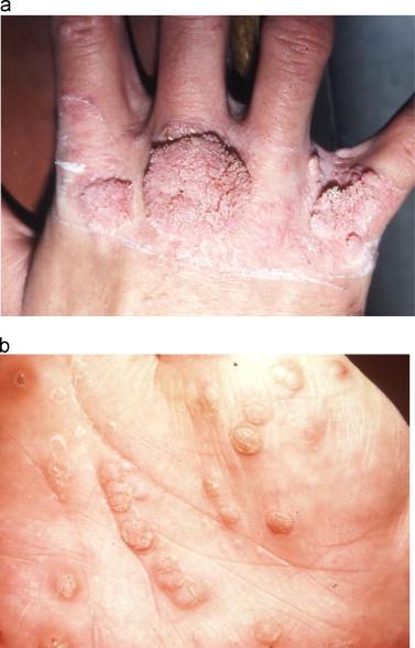 hpv type skin warts virus del papiloma humano concepto