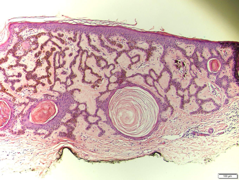 Vulvar Disease: Jacob Bornstein · | Books Express