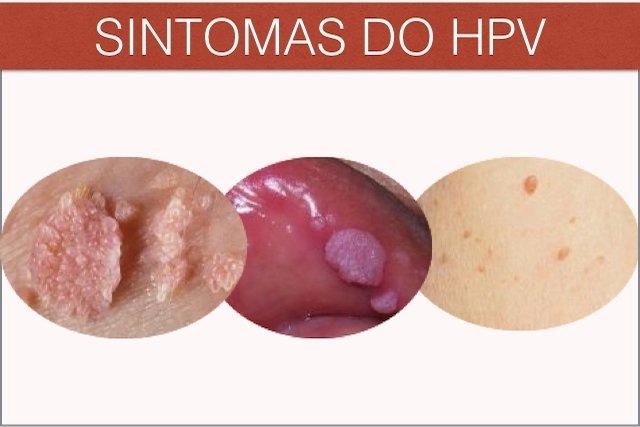virus hpv tem cura definitiva