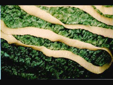 viermi intestinali la peste)