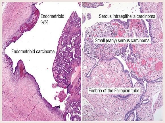 ovarian cancer epithelial tumors)