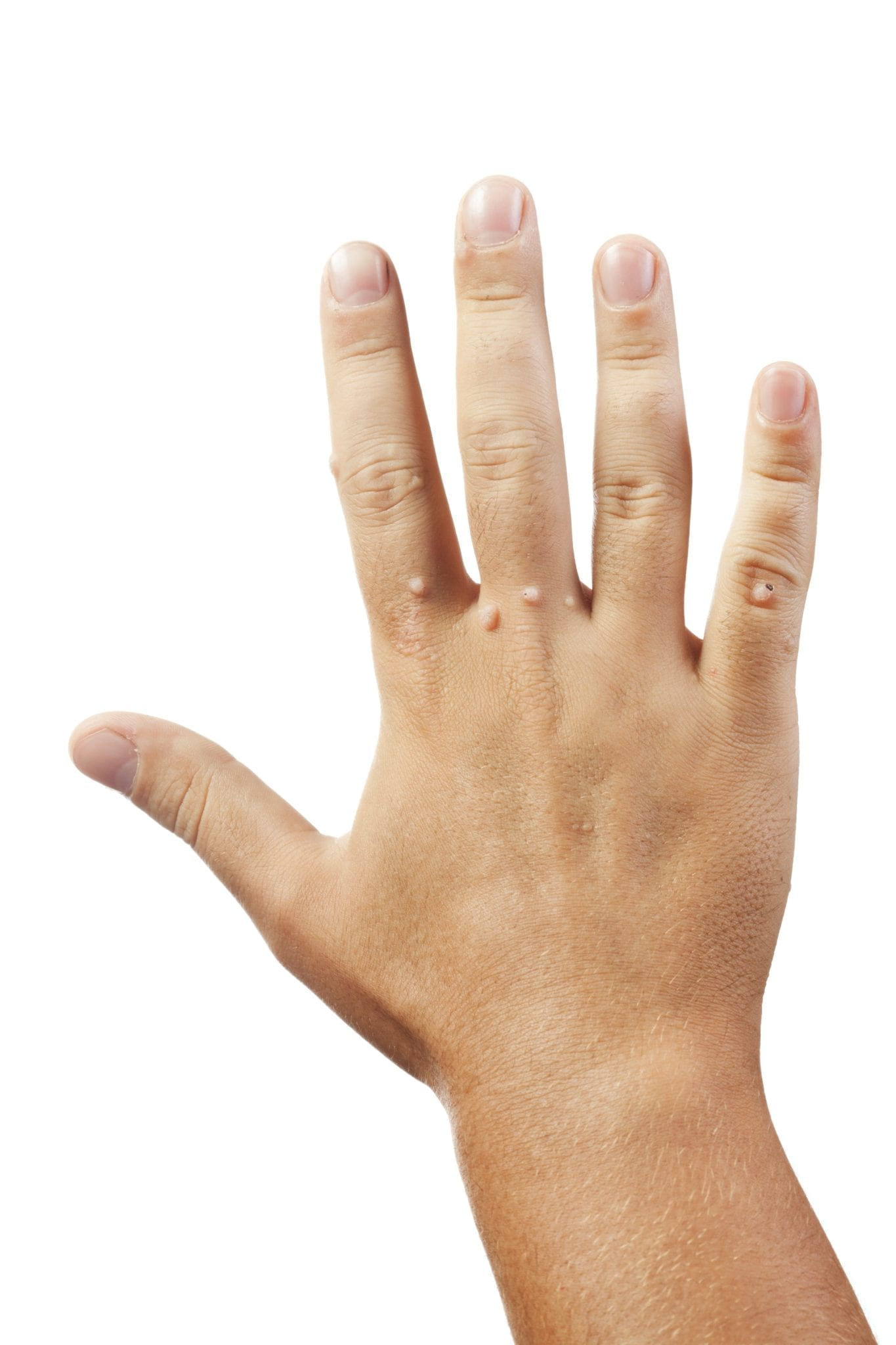 warts on hands disappear