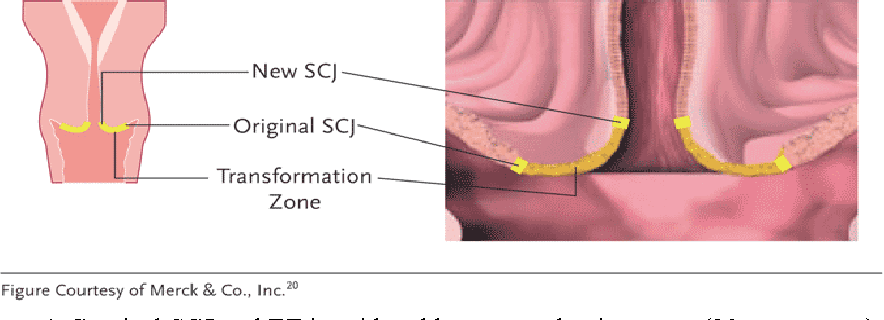 human papillomavirus lesions cervix)