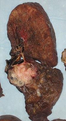 cancer pulmonar genetic