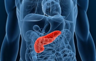 De ce este cancerul pancreatic o boala atat de agresiva?