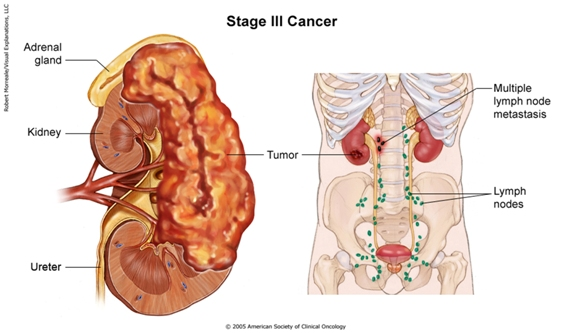 renal cancer update)