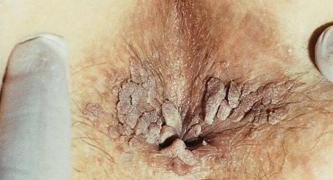 hpv genital tratament)