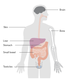 hodgkin cancer curable)
