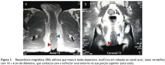 papiloma anorectal