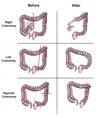 cancer malign de colon