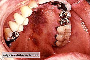cancerul gurii simptome