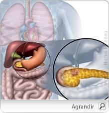cancer pancreas hereditaire