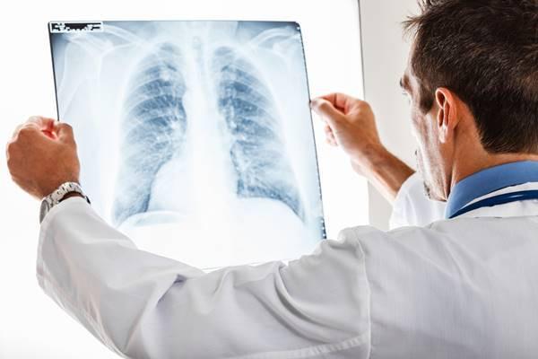 imunoterapie cancer pulmonar cu celule mici
