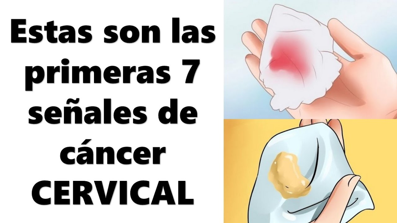 cancer cervical que es