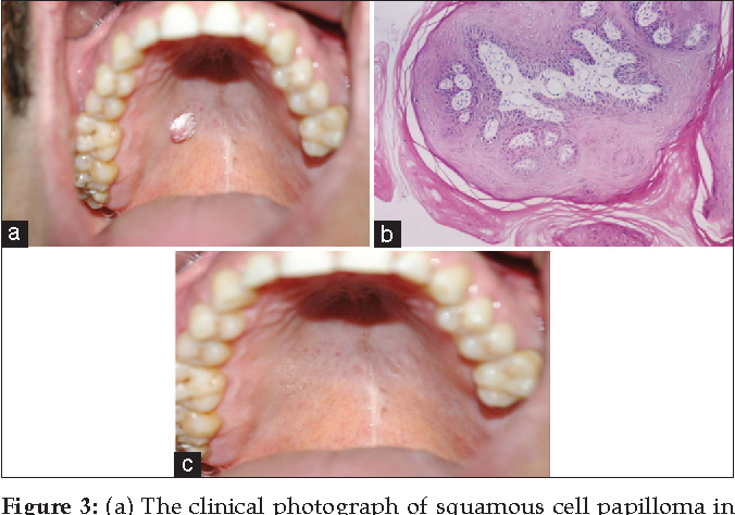 squamous cell papilloma in mouth