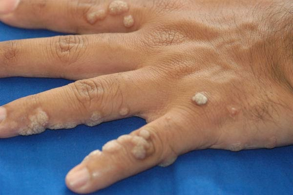 pictures of human papillomavirus on hands