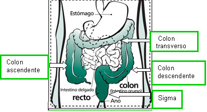 cancer de colon operacion complicaciones