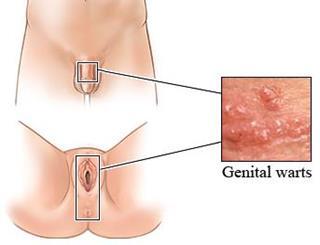 virus del papiloma sintomas en mujeres)