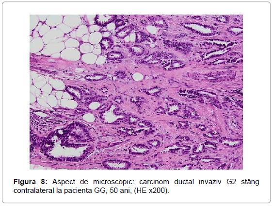 Metastaze ale cancerului de sân, eliminate, în premieră, printr-un tip nou de imunoterapie