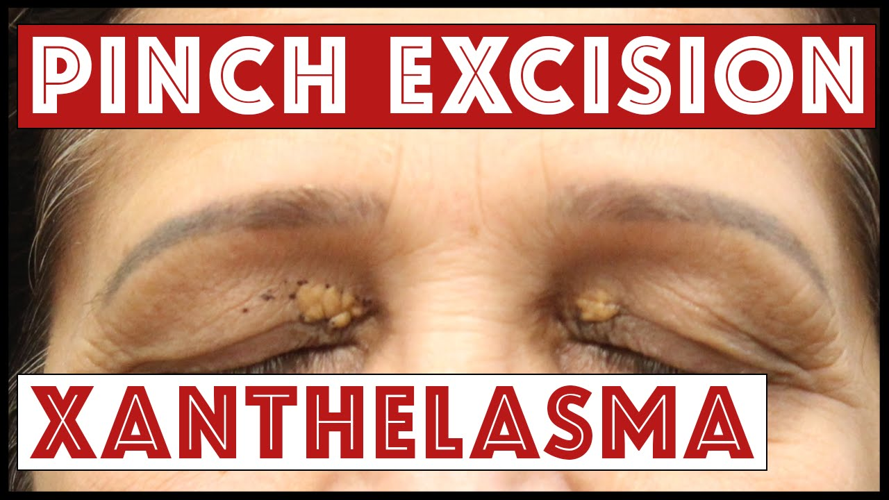 removal of papilloma on eyelid cpt)