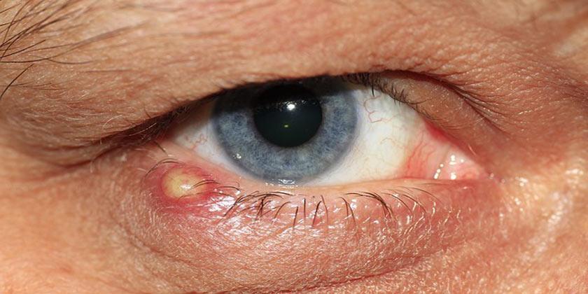 papiloma palpebral tratamiento hpv e herpes genitale