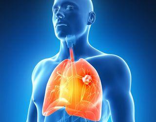 cancer la plamani simptome