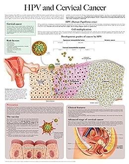 hpv cancer cervical)
