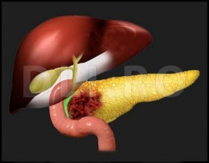 cancerul pancreatic se vindeca