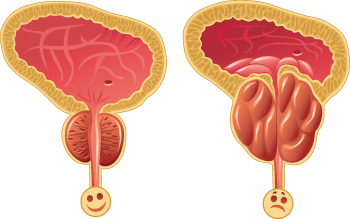 cancerul de prostata este ereditar cancer pulmonar ninos sintomas