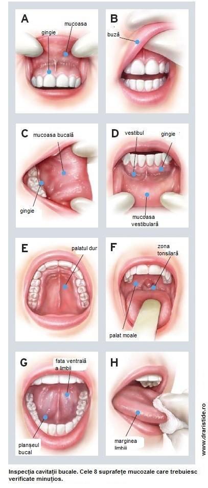 cancer planseu bucal simptome
