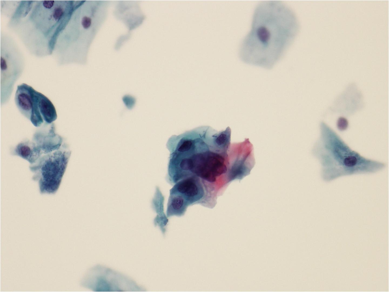 skin papilloma causes)