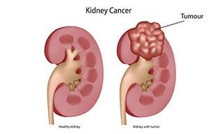 cancerul rinichilor