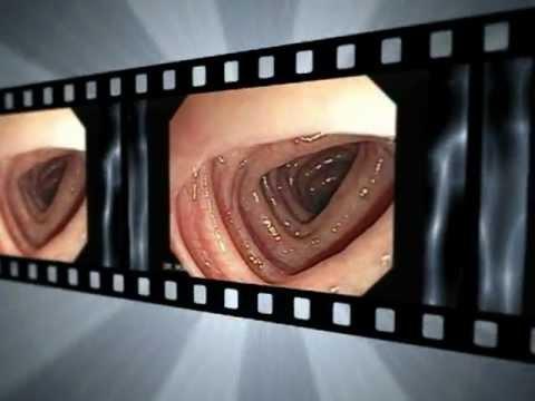 (`?=3Q`)ᐅ3 Recetas Fáciles Para Navidad | Findus ~ hemorroides - síntomas y causas - mayo clinic
