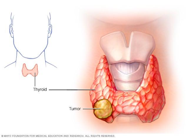 que es cancer de tiroides)