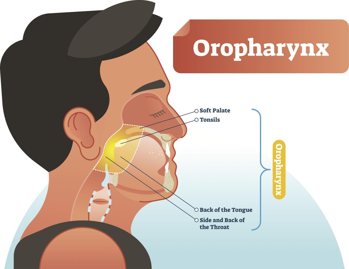 cancer de orofaringe metastase)