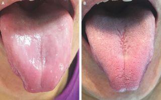 inflammation of tongue papillae)