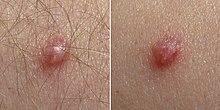 les symptomes du papillomavirus chez lhomme)