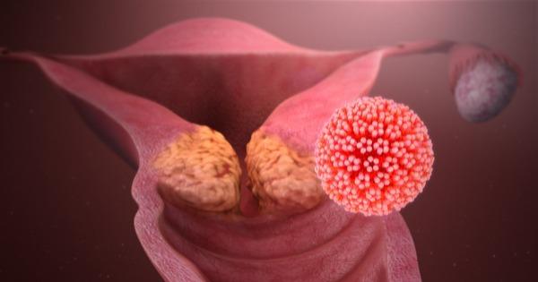 cancer de colo de utero causado por hpv