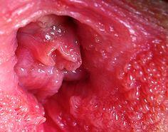 vestibular papillomatosis does it go away