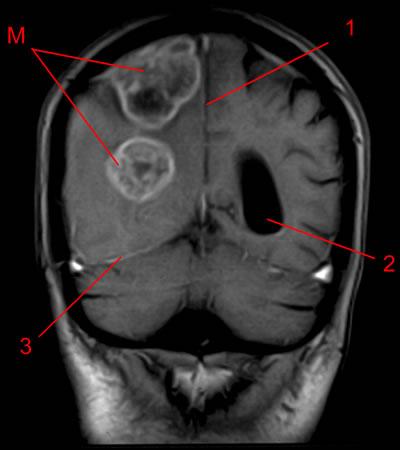 enterobius vermicularis genus mano que es papiloma humano