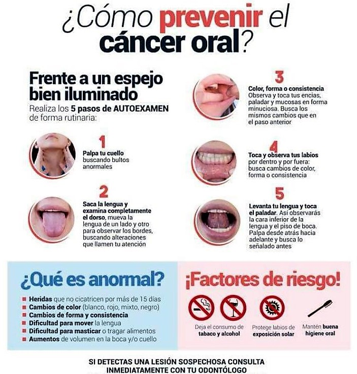 cancer bucal causas