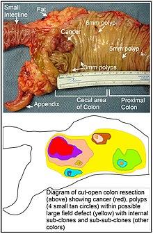 cancer la colon malign)