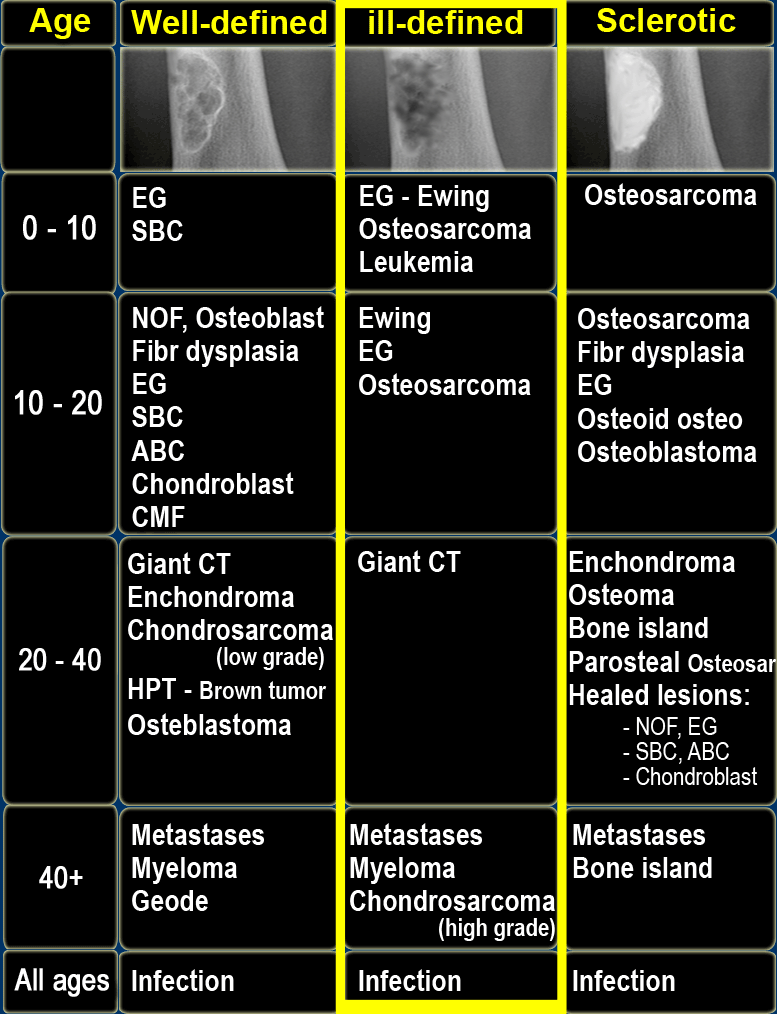 cancer testicular minsal cancer de pancreas vida