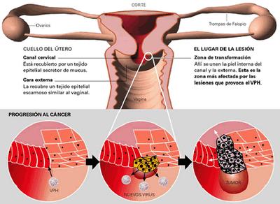 virus del papiloma humano y sus sintomas)