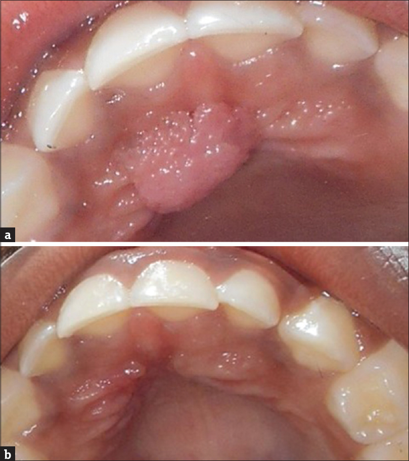 squamous papilloma palate treatment