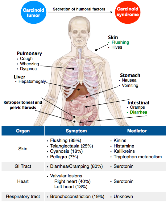 neuroendocrine cancer carcinoid syndrome