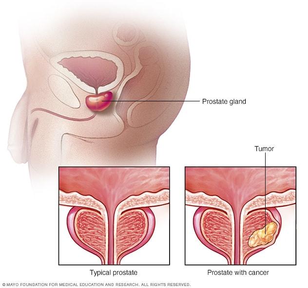 que es cancer de prostata peritoneal cancer hernia