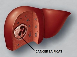 cancer la ficat)