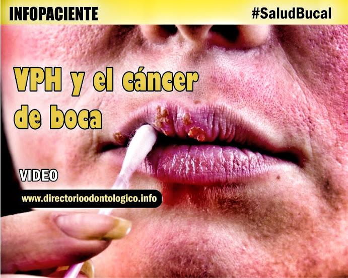 cancer bucal de vph