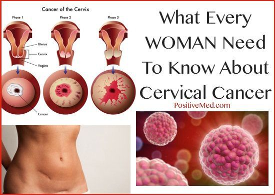 cervical cancer can be cured)